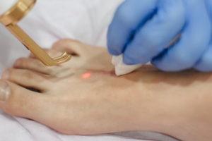 Лазерное лечение рубцов и шрамов