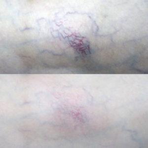 Лазерное лечение сосудистой сетки